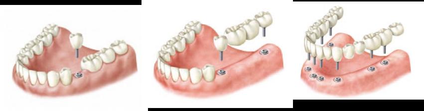 croquis-pieza-implantes-dentales